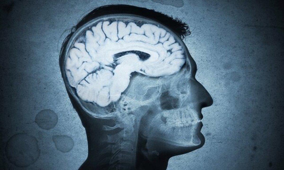 تخریب مغز به واسطه باکتری دهان