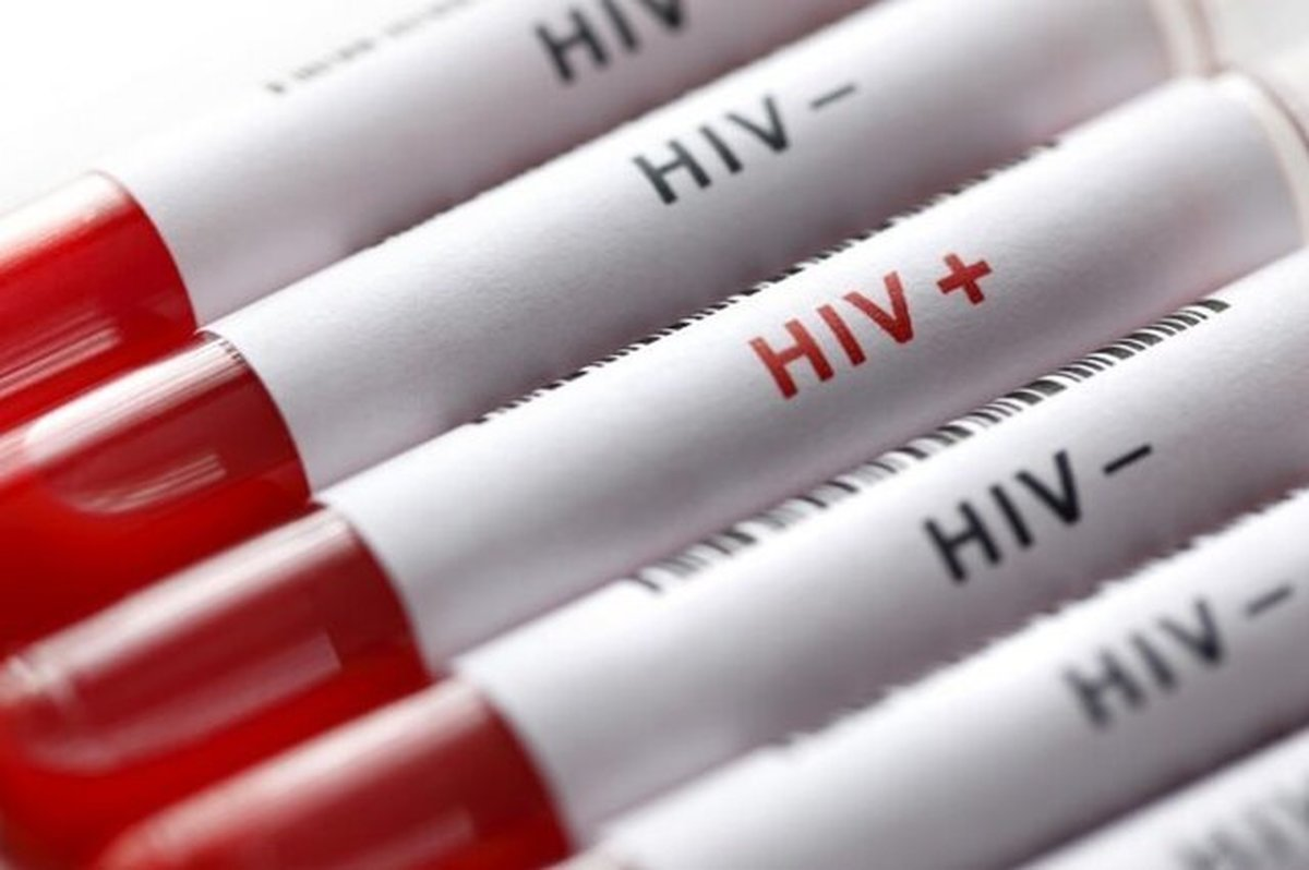 تقدیر سازمان ملل از نقش ایران در مبارزه با ایدز