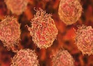 سرطانهایی که ممکن است در آینده از بین بروند