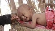 جنگ و قحطی میتواند عمل نابودی  نسل بعدی یمنیها باشد