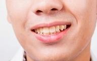 ترومای دندان چیست؟| تاثیر تروما در گفتار و بیان کودکان