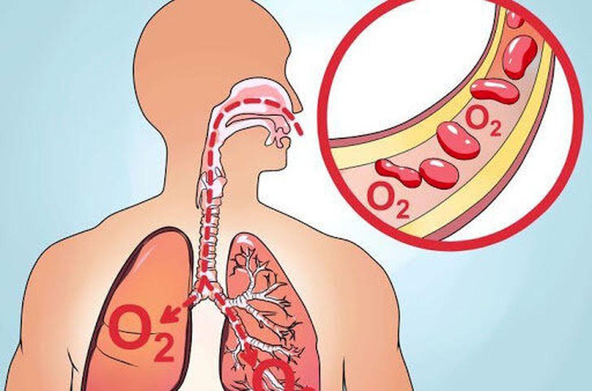 مهمترین نشانه های کمبود اکسیژن در بیماران کرونایی
