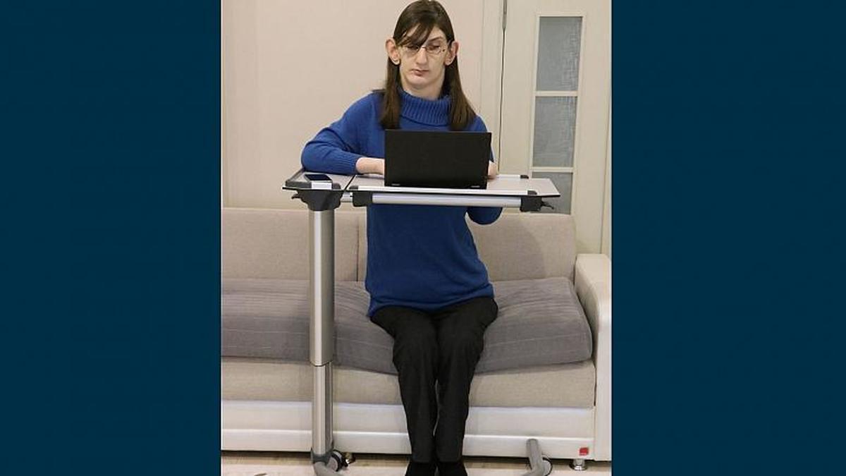 رومِیسا گلگی ۲۴ ساله از ترکیه بهعنوان بلندترین زن جهان معرفی شد