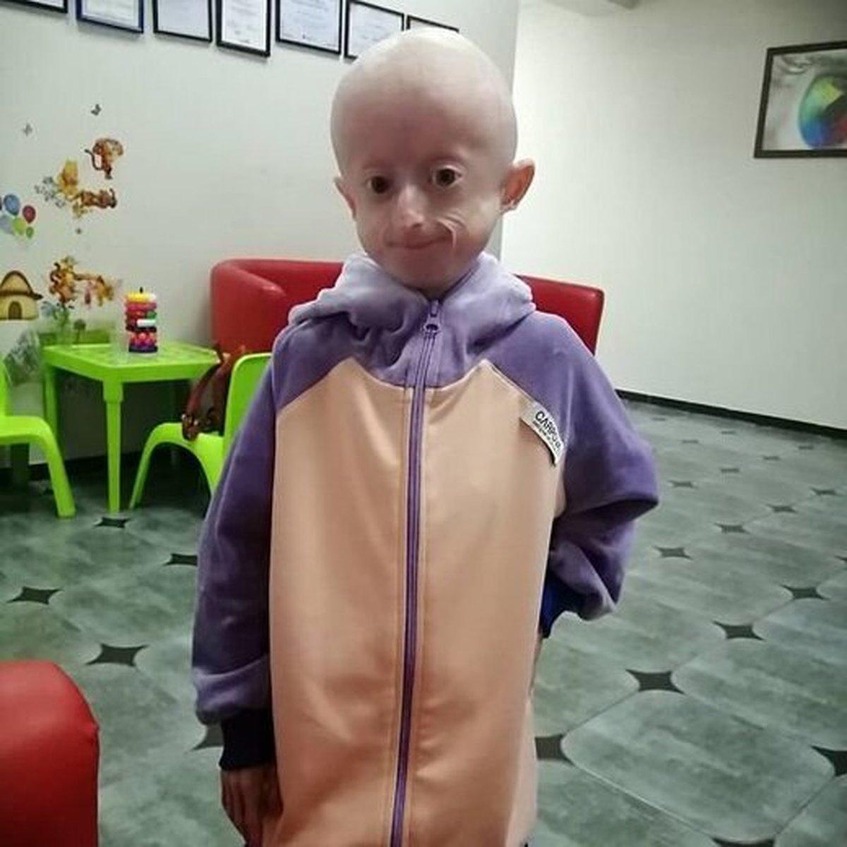 دختر ۱۰ ساله اوکراینی بر اثر پیری زودرس درگذشت