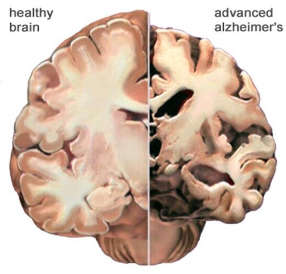 کاهش خطر آلزایمر با ۲۱ روش موثر