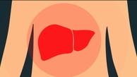 تشخیص کبد چرب با رنگ ادرار و مدفوع