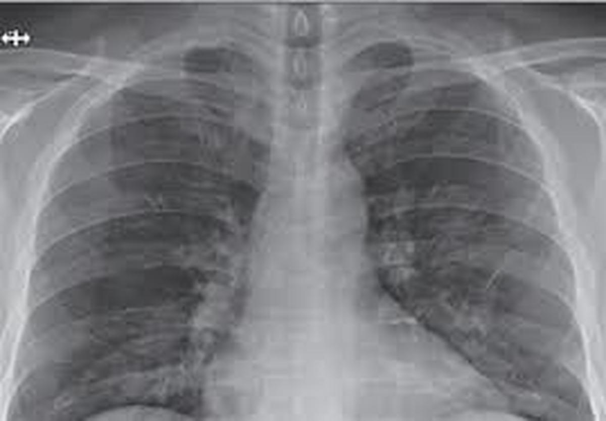 در چه صورتی ریه درگیر کرونا میشود؟