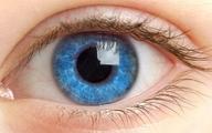 این ۵ علائم هشداردهنده در چشم را جدی بگیرید!