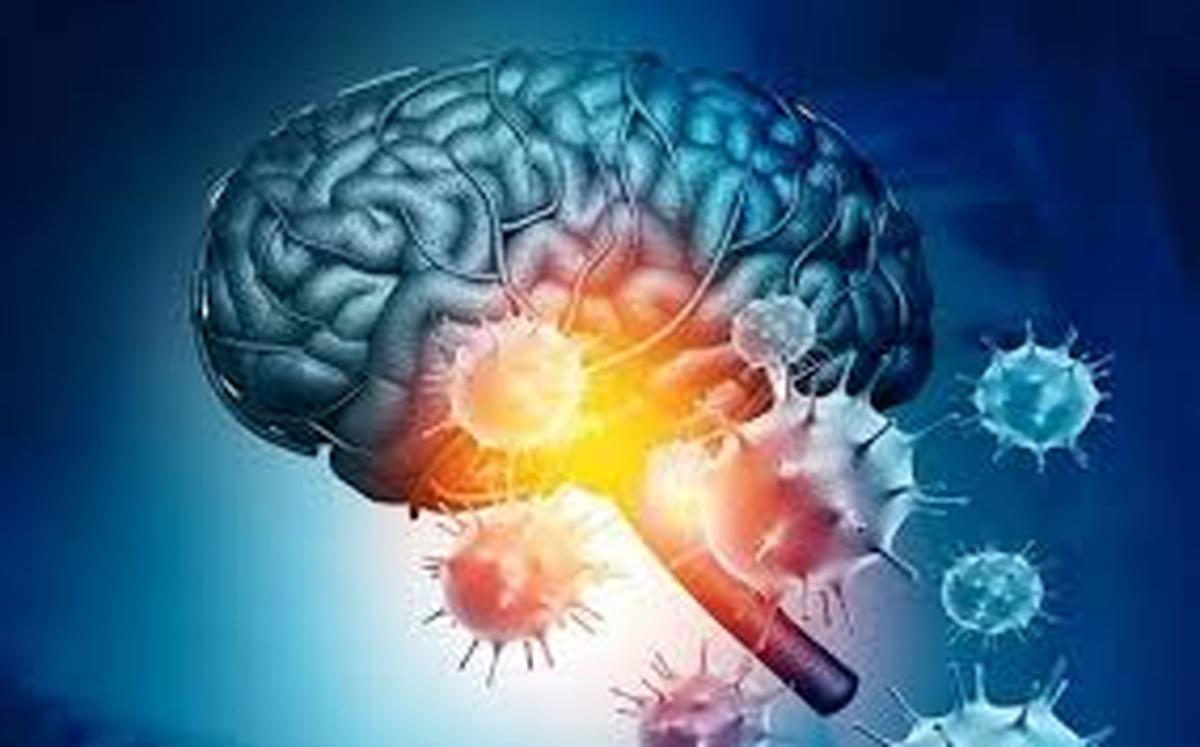 موقعیت مبهم مغزدر شرایط پاندمی ویروس کرونا