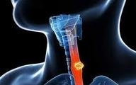 توانمندی نوعی باکتری در مهار سلولهای سرطانی مری