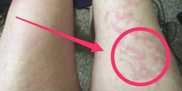 ممکن است بثورات پوستی تنها علامت ابتلا به کرونا باشد