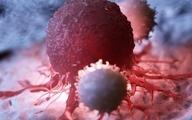 نشانههای سرطان پستان  سهم یک درصدی مردان در میان مبتلایان