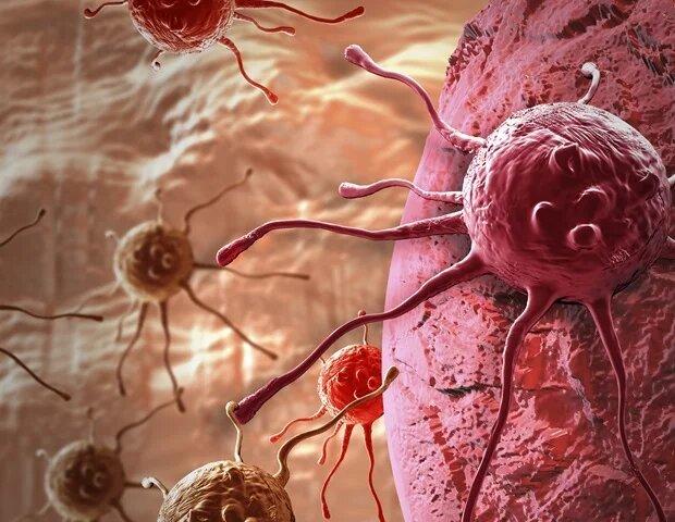 ۳ عامل بروز سرطان ها | روش های طبخ گوشت و تاثیر آن بر بروز سرطان
