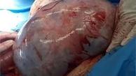 عمل جراحی |  توده 22 کیلوگرمی از شکم یک بیمار خارج شد