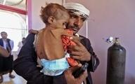 برنامه جهانی غذا اقدام فوری برای پایان گرسنگی در یمن را خواستار شد
