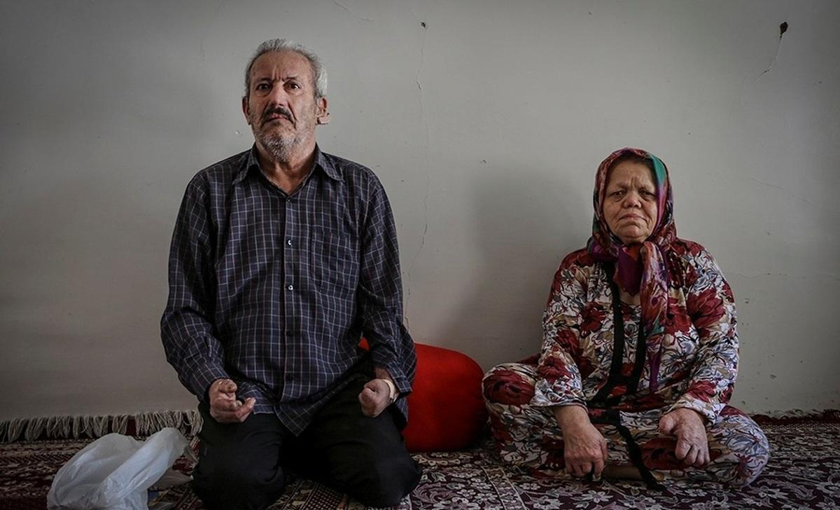 بیماری جذام  | حل مشکلات ۴۰ ساله جذامیان در مشهد  + عکس
