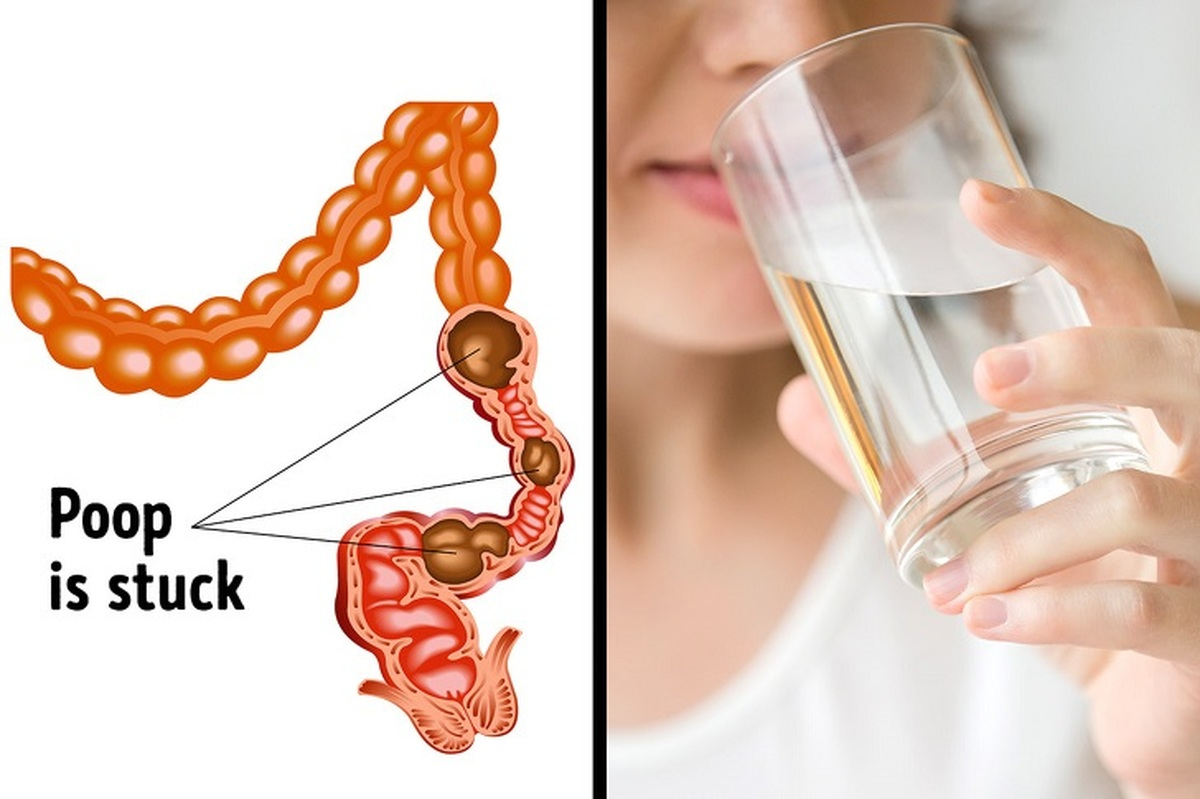 ۶ روش ساده و فوری برای درمان یبوست