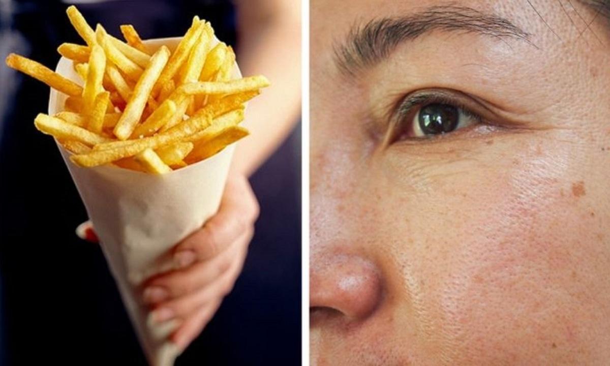 مواد غذایی که به پوست صدمه میزنند