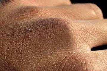 کرونا و خشکی پوست