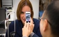 با دوربین گوشیهای هوشمند میتوان کم خونی را تشخیص داد