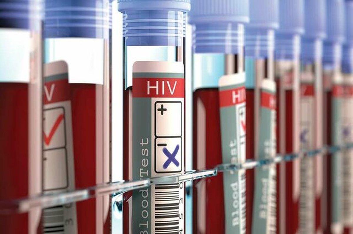 """برای تشخیص محرمانه و رایگان """"ایدز"""" به کجا باید مراجعه کرد؟"""