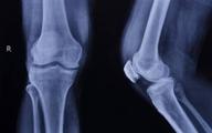 ۷ توصیه برای داشتن استخوانهای سالم و قوی
