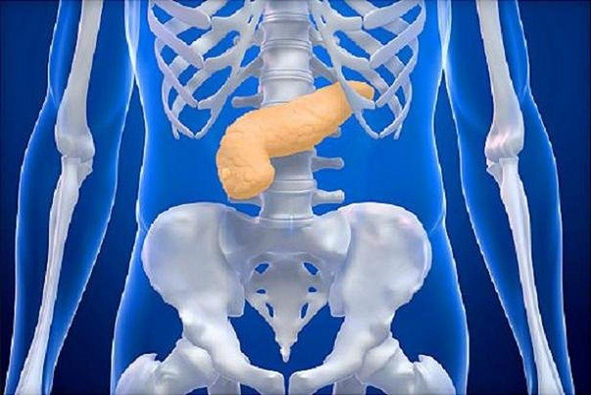 تاثیر جراحی کاهش وزن در پایین آمدن ریسک سرطان لوزالمعده